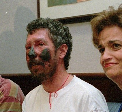 Beck Weathers's picture after being rescued.